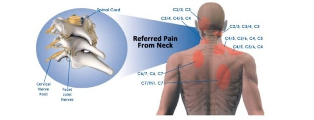 simonetta-alibrandi-osteopata-dolore-riferito-cervicale