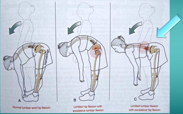 simonetta alibrandi osteopata posturologo fascia toraco lombare mal di schiena