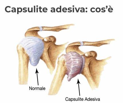 simonetta alibrandi osteopata roma posturologo  spalla congelata periartrite scapolo-omerale.jpeg