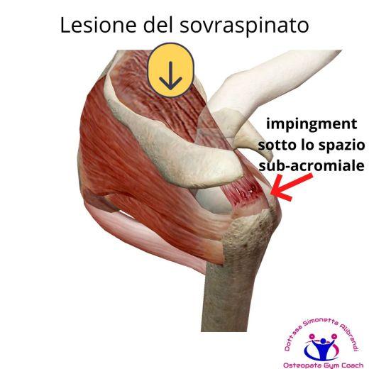 simonetta alibrandi osteopata roma posturologo personal trainer dolore alla spalla tendinite lesione al sovraspinato lesione cuffia dei rotatori tendinopatia impingment subacromiale