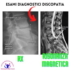 simonetta alibrandi osteopata mal di schiena lombalgia esercizi efficaci rx risonanza magnetica