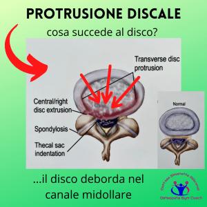 simonetta-alibrandi-osteopata-mal-di-schiena-lombalgia-esercizi-efficaci-protrusione-discale-rimedi-postura corretta