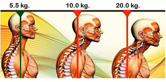 simonetta-alibrandi-osteopata-posturologo-personal-trainer-esercizi-efficaci-cervicalgia-sbandamenti-vertigini-disturbi-vista-dolore-cervicale-postura-scorretta-capo