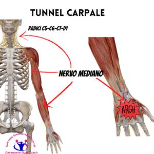simonetta-alibrandi-osteopata-cause-Tunnel-carpale-nervo mediano