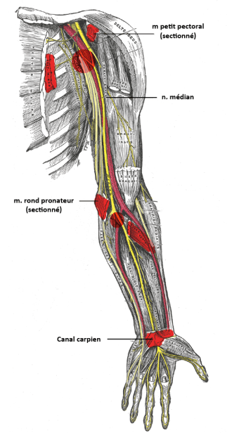 ostéopathe roubaix compression nerf médian