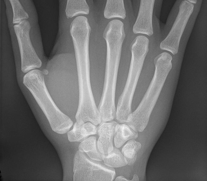 Canal carpien et ostéopathie