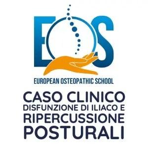 Caso Clinico disfunzione di  Iliaco e ripercussione posturali