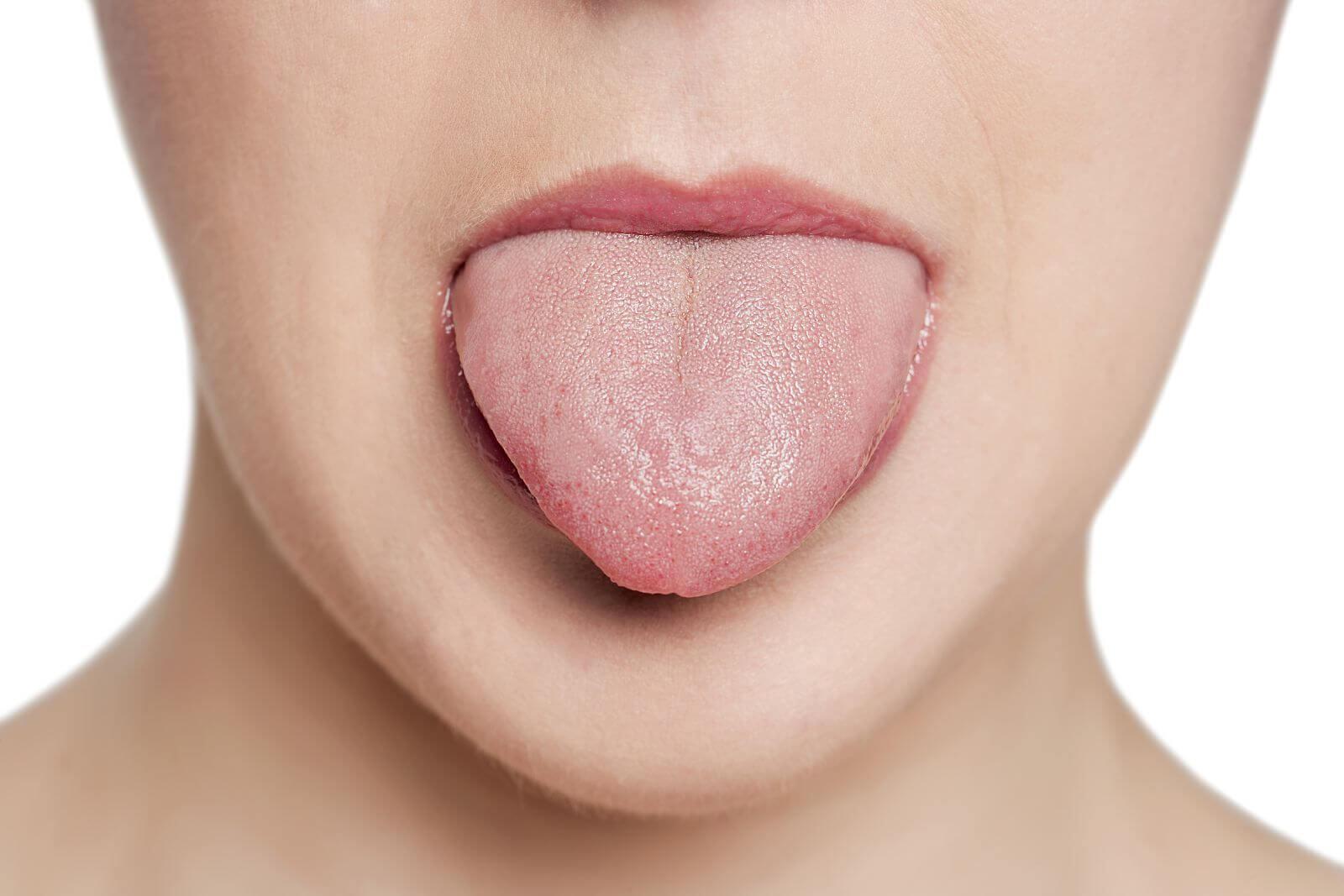 Онемение и жжение языка при шейном остеохондрозе – это один из симптомов проблем с позвоночником. Онемение головы при шейном остеохондрозе