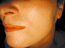 wygładzenie skóry - Jet Care - po