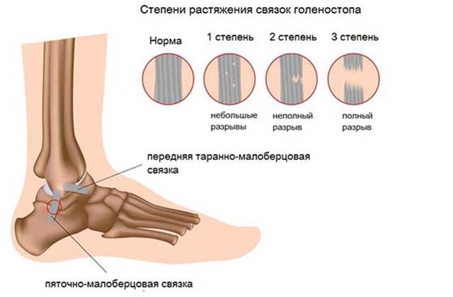 Подвернула ногу и щиколотка опухла: что делать и чем лечить в домашних условиях