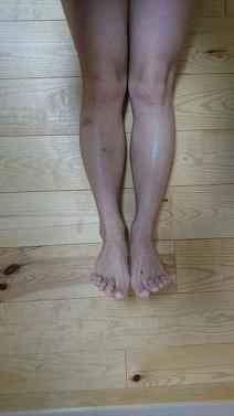 脚痩せストッキングで足痩せ