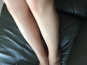 メルティヴィーナスクリームで脚を除毛した時の画像
