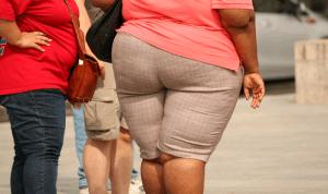 obesidade-endocrinologia-otorrinos-curitiba
