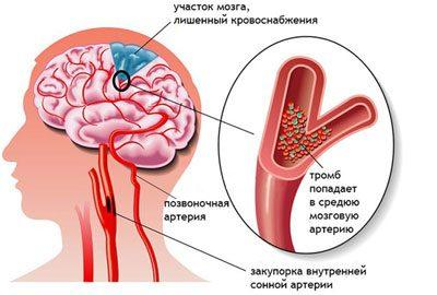 870e37809 يؤثر الملح الزائد في الجسم سلبًا على الأعضاء الرئيسية التي تؤدي عددًا من  الوظائف الحيوية - الأنسجة العضلية والقلب والأوعية الدموية والكلى والجهاز  العصبي ...