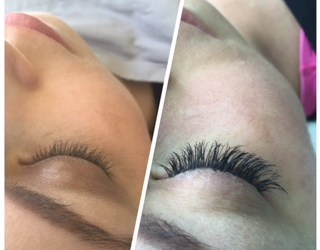 Five Questions about EyeLash Extensions