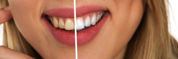 Home Remedies for Cosmetic Dentistry