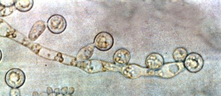Kandida mantarı nedir, tedavisi nasıldır