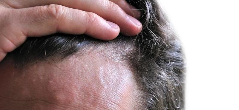 Saç diplerinde kızarıklık, kaşındı ve kabuklanma seboreik dermatit belirtileridir