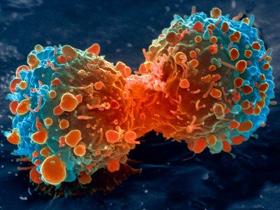 Как восстановить работу кишечника после лучевой терапии. Последствия лучевой терапии при раке прямой кишки