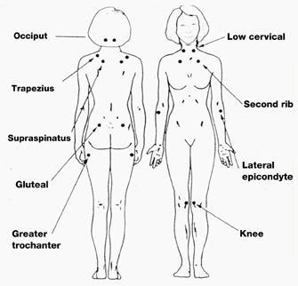 Natural Rheumatoid Arthritis Treatment by Dr. Mercola
