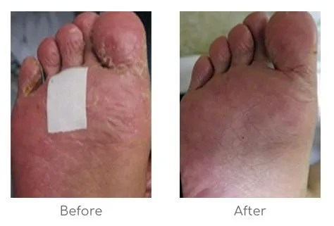 Before and after hand foot syndrome results