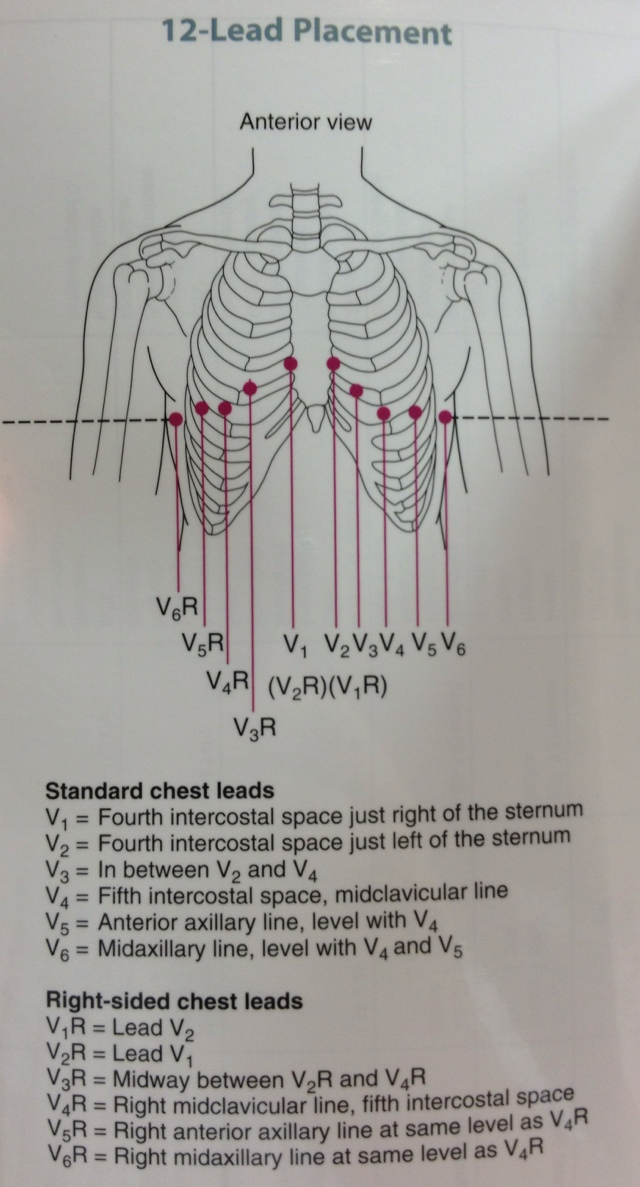 12 lead ekg placement diagram when to use sequence | ouremssite