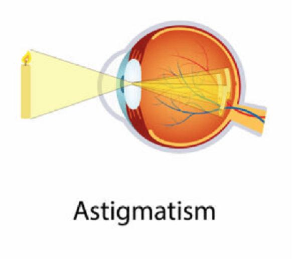 astigmatism ammetropia