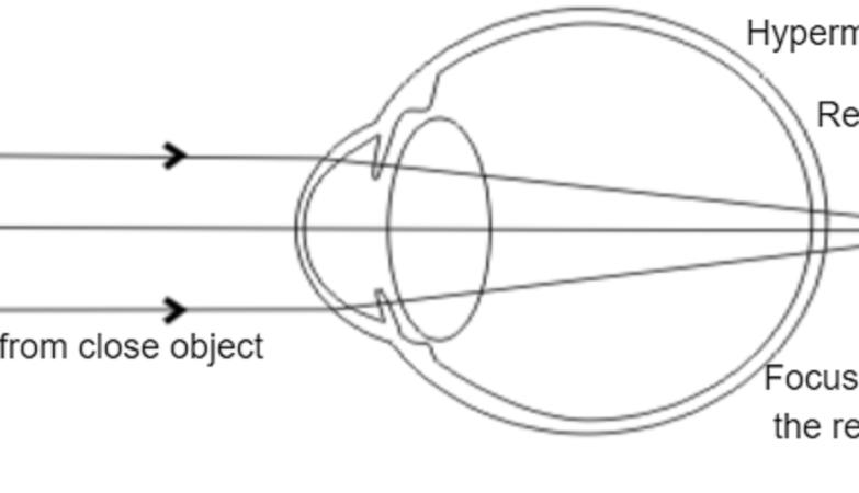 hypermetropia