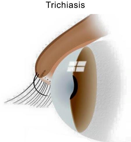 Trichiasisor Eyelash Disorder