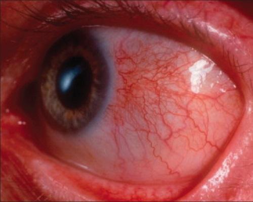 Episcleritis, Inflamation of Episclera
