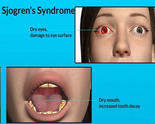 Sjogren Syndrome