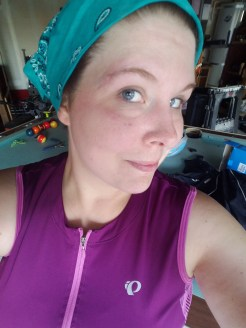 Face scars today, just returned from my longest ride getting back on the bike, 12.5 miles