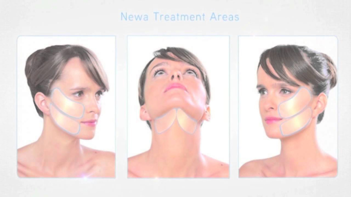 newa_treatment_areas