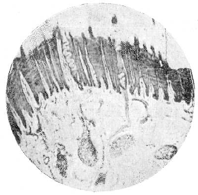 Fig-34-Section-Of-Frog-Through-Corium-And-Horn