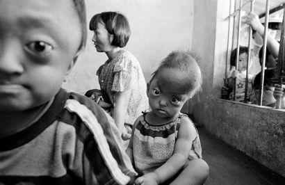 """Efeitos tardios da guerra: muitas crianças vietnamitas sofrem pelo uso do """"Agent Orange"""", mesmo décadas depois.  -    FOTO: ROLANDSCHMID/BLOOMBERG"""