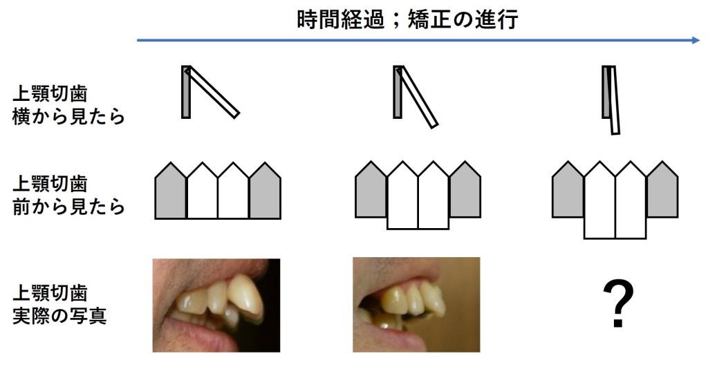 出っ歯がまっすぐになると、歯が伸びて見える
