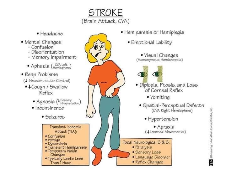 stroke mnemonics