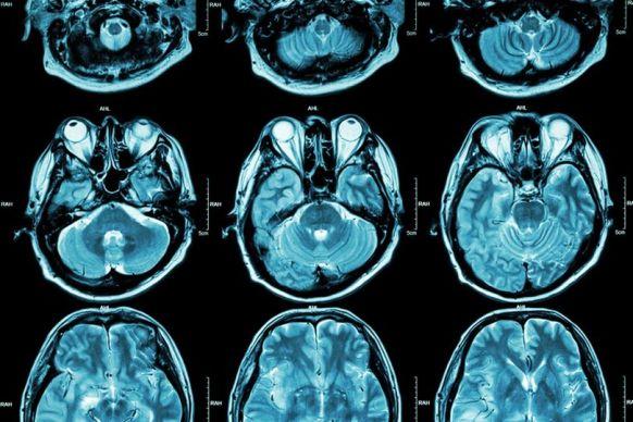 Universo multidimensional dentro do cérebro