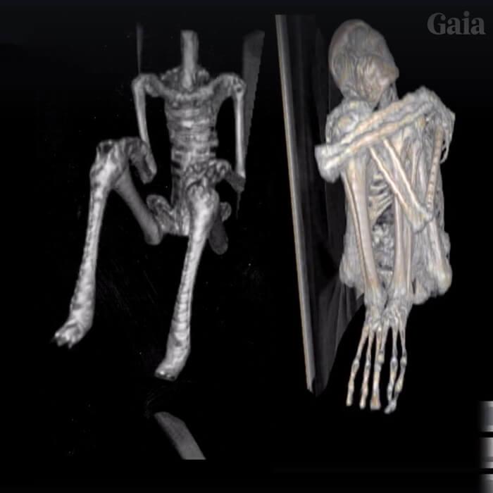 Nova múmia anômala de Nazca