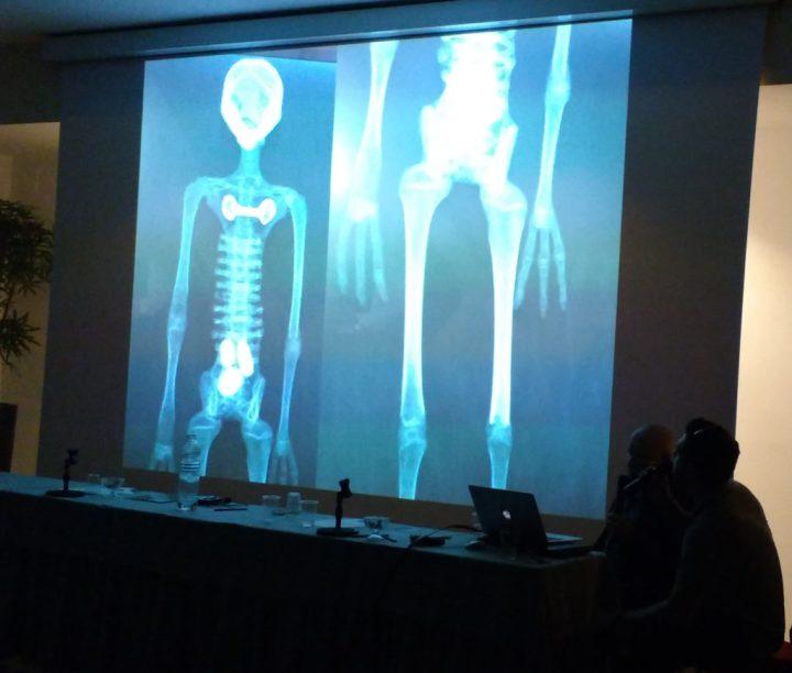 Congresso Mundial sobre as Múmias de Nazca, aberto ao público, ocorre em Roma 4