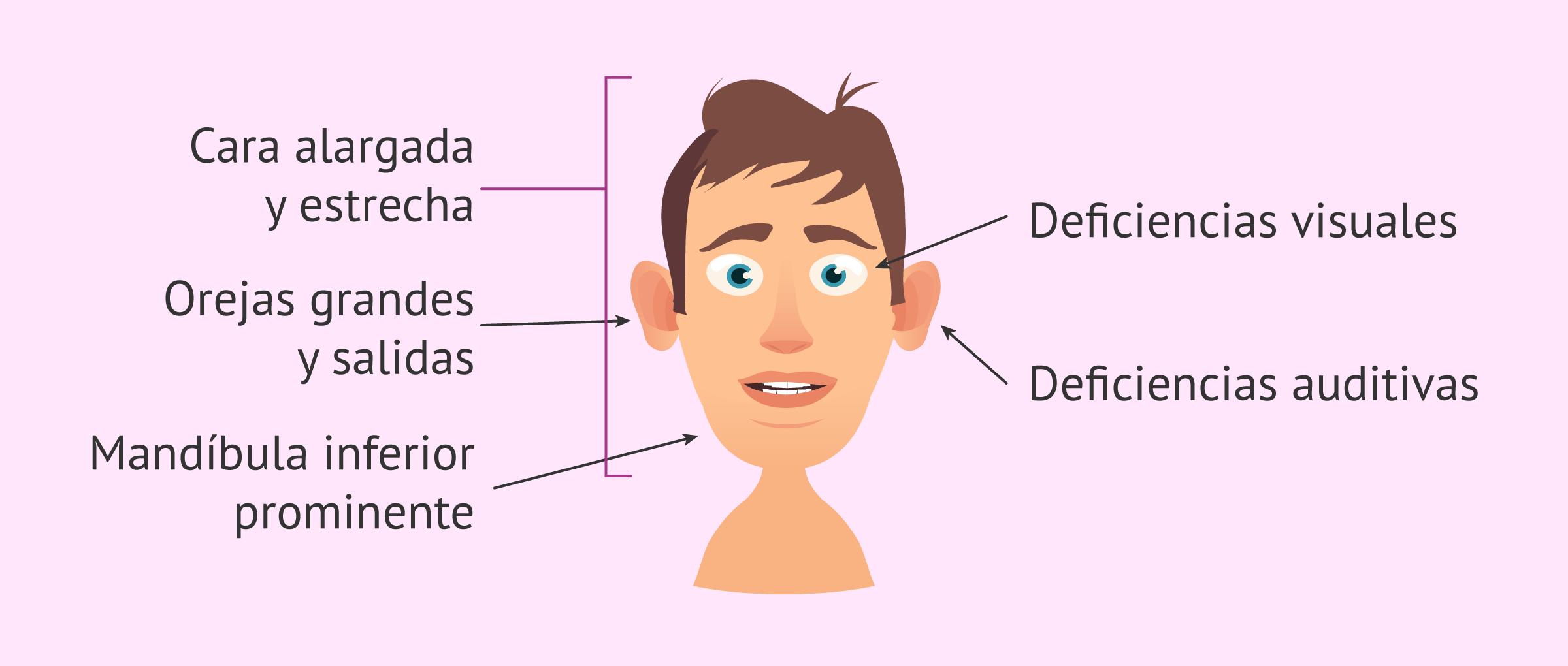 El síndrome X-frágil o de Martin-Bell: características y ...
