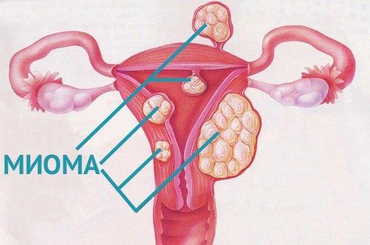 міоми матки реабілітація