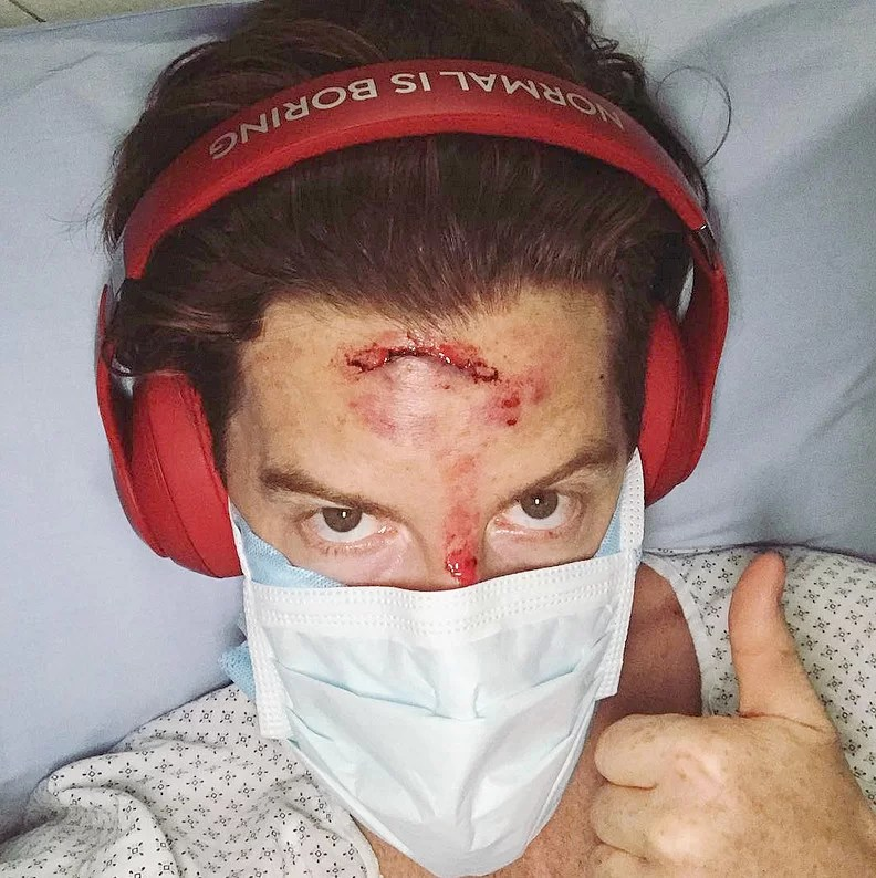 shaun-white-accident Day in the Life: Shaun White