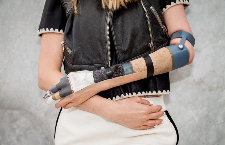 1-Materialise-arm-for-Kelly-Knox-photo-by-Omkaar-Kotedia-1200x776