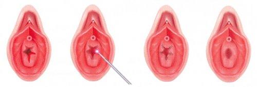 гіменопластіка