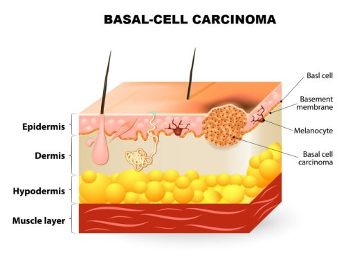 small resolution of melanoma is an aggressive form of skin cancer the majority of melanoma are coloured but a small number of melanoma s do not show any colour