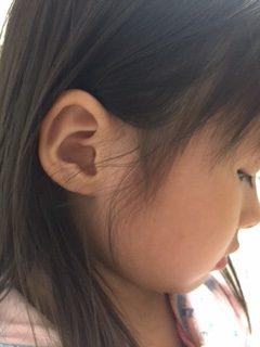 耳に違和感を感じる場合は注意!ぼわ~っとする主な原因と病気