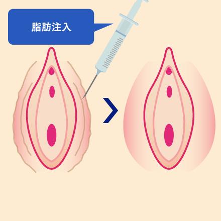 大陰唇のシワ・たるみ   オザキクリニックの婦人科形成