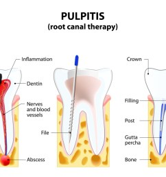 root canal therapy [ 1482 x 1024 Pixel ]