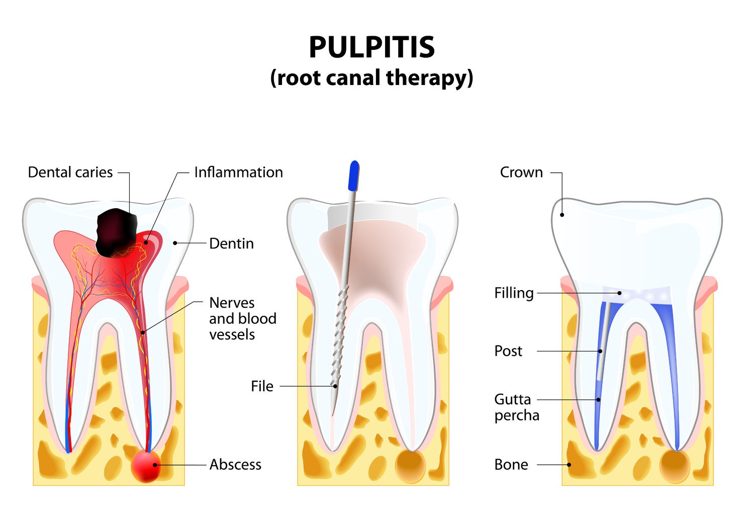 hight resolution of root canal therapy
